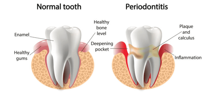 Bleeding gums treatment in Kanata and Ottawa Ontario
