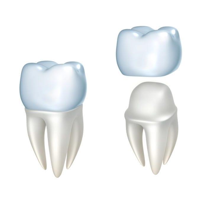 affordable dental crowns in Kanata, Ontario