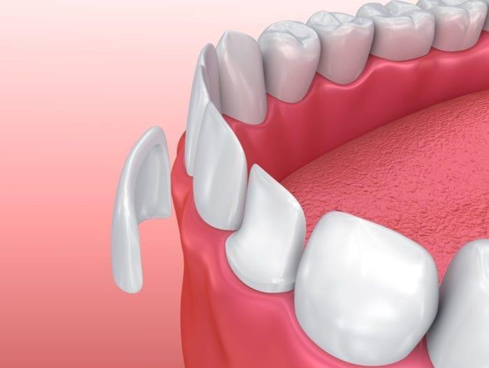 Dental Veneers in Kanata by cosmetic dentist Dr. Barakat