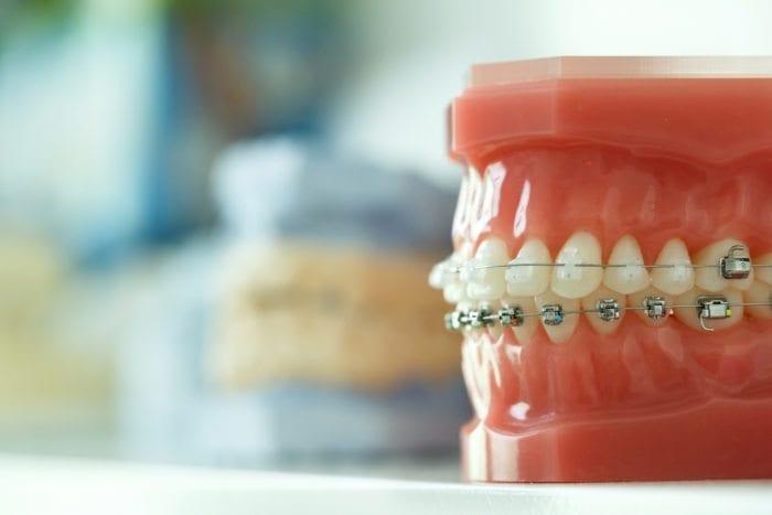 Crooked teeth treatment in Stittsville, Ottawa, Ontario