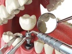 kanata, ontario dentist
