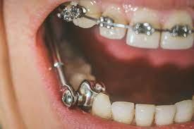 early orthodontic treatment in Katana and Ottawa Ontario