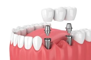 dental implants tooth replacement in Stittsville Ontario